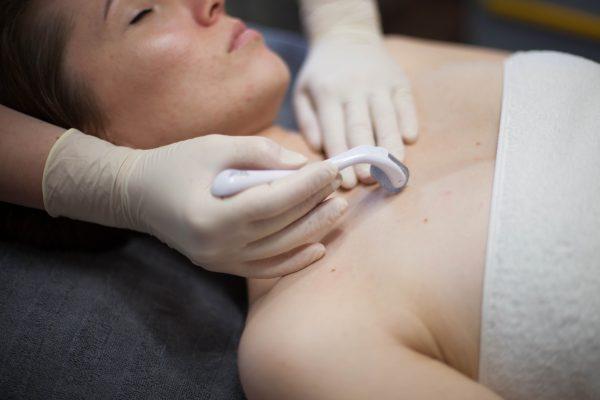Kūno mezoterapija, dermaroller terapija