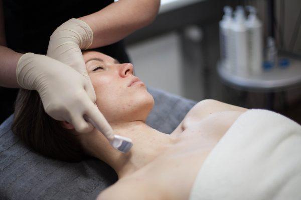 Adatinė DERMAROLLER terapija veidui